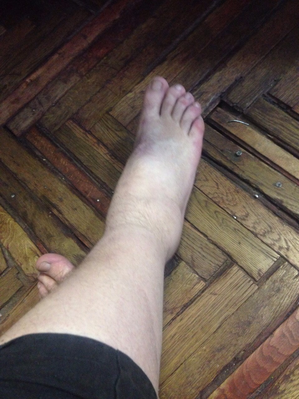 Болит нога варикоз что делать