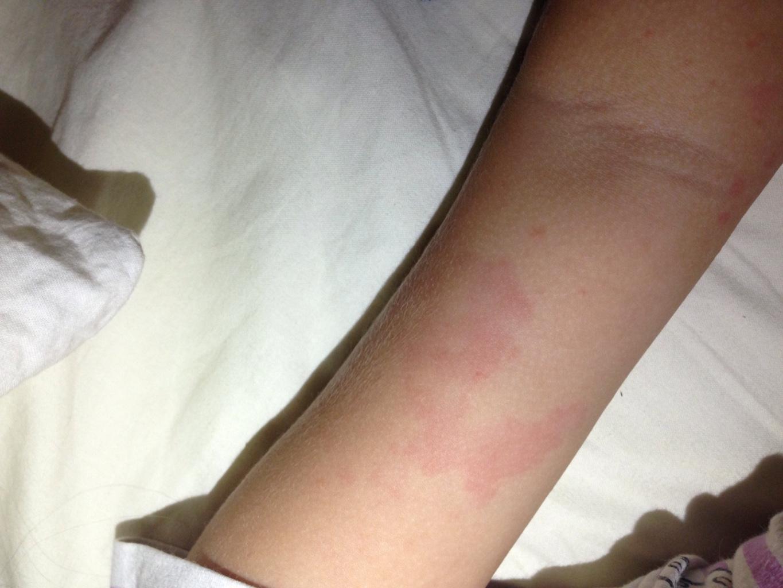 сильная реакция на укусы комаров