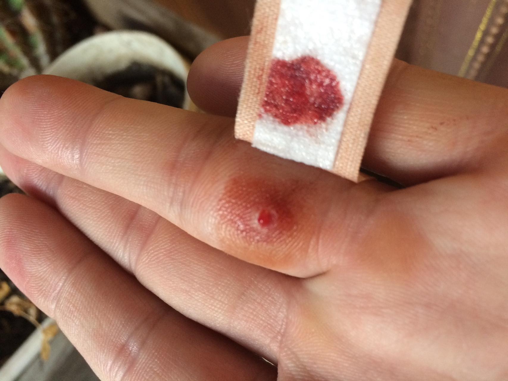 тромб на пальце руки фото