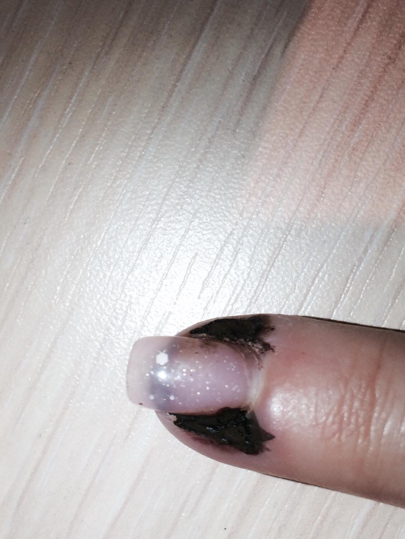 Болит сустав указательного пальца на правой руке