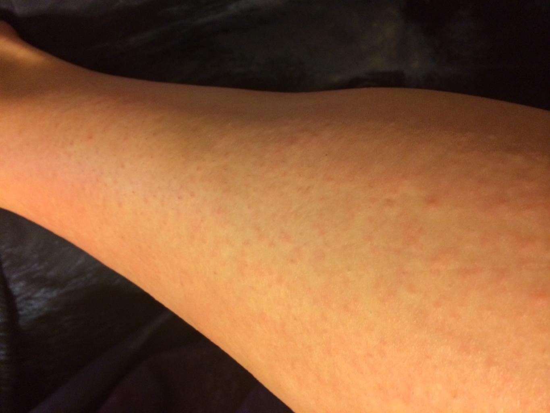 аллергия на хлеб отзывы