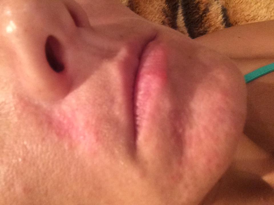 Сыпь на лице подбородок 29