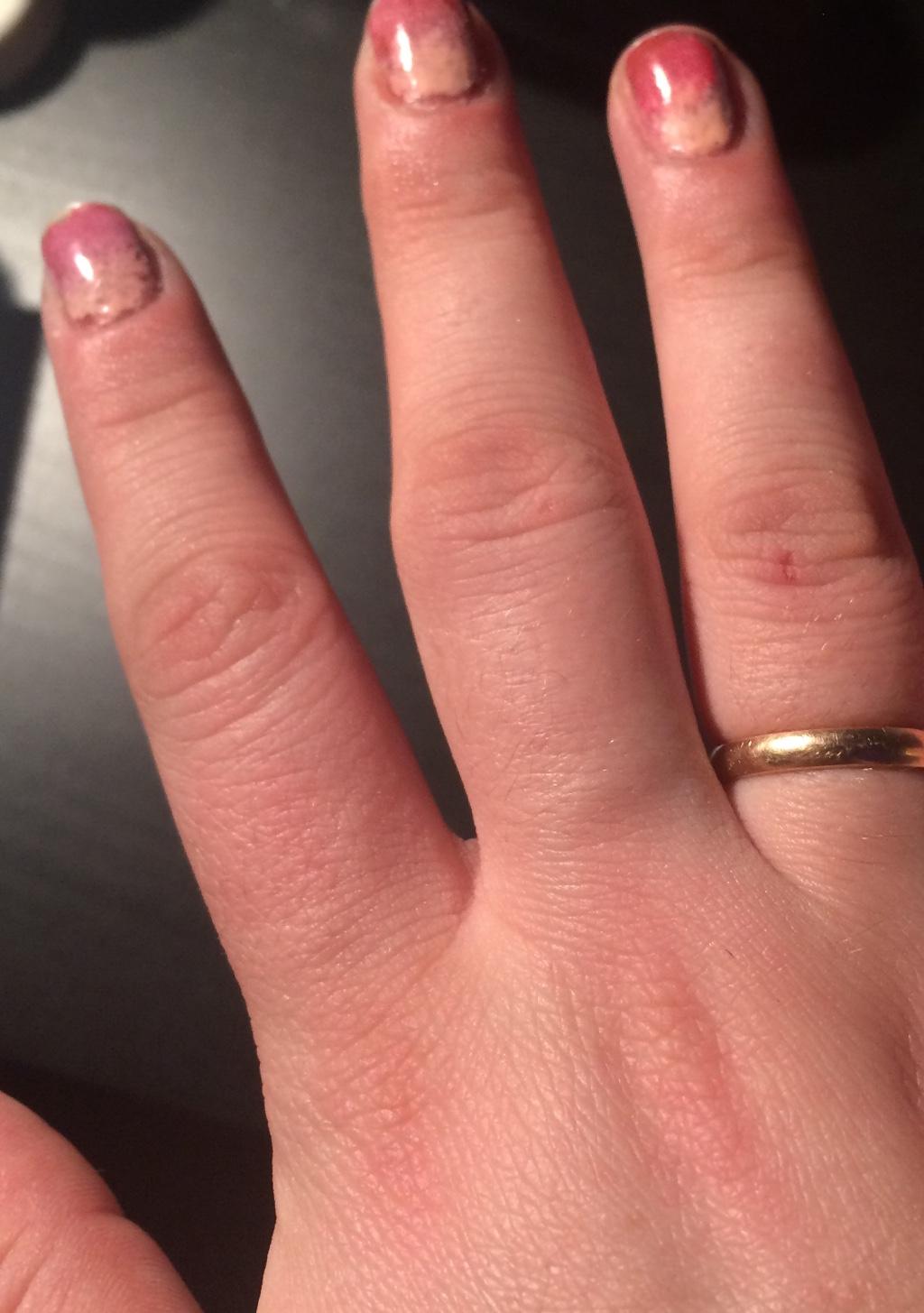 Опухают И Болят Суставы Пальцев