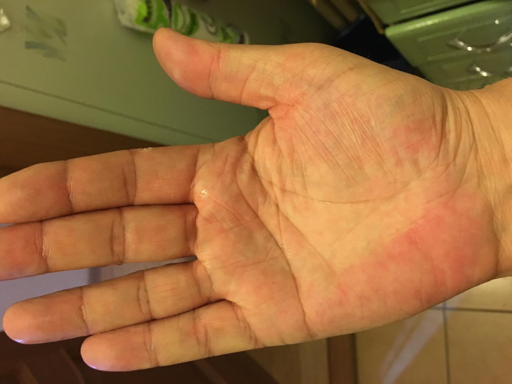 Сухие руки что делать фото