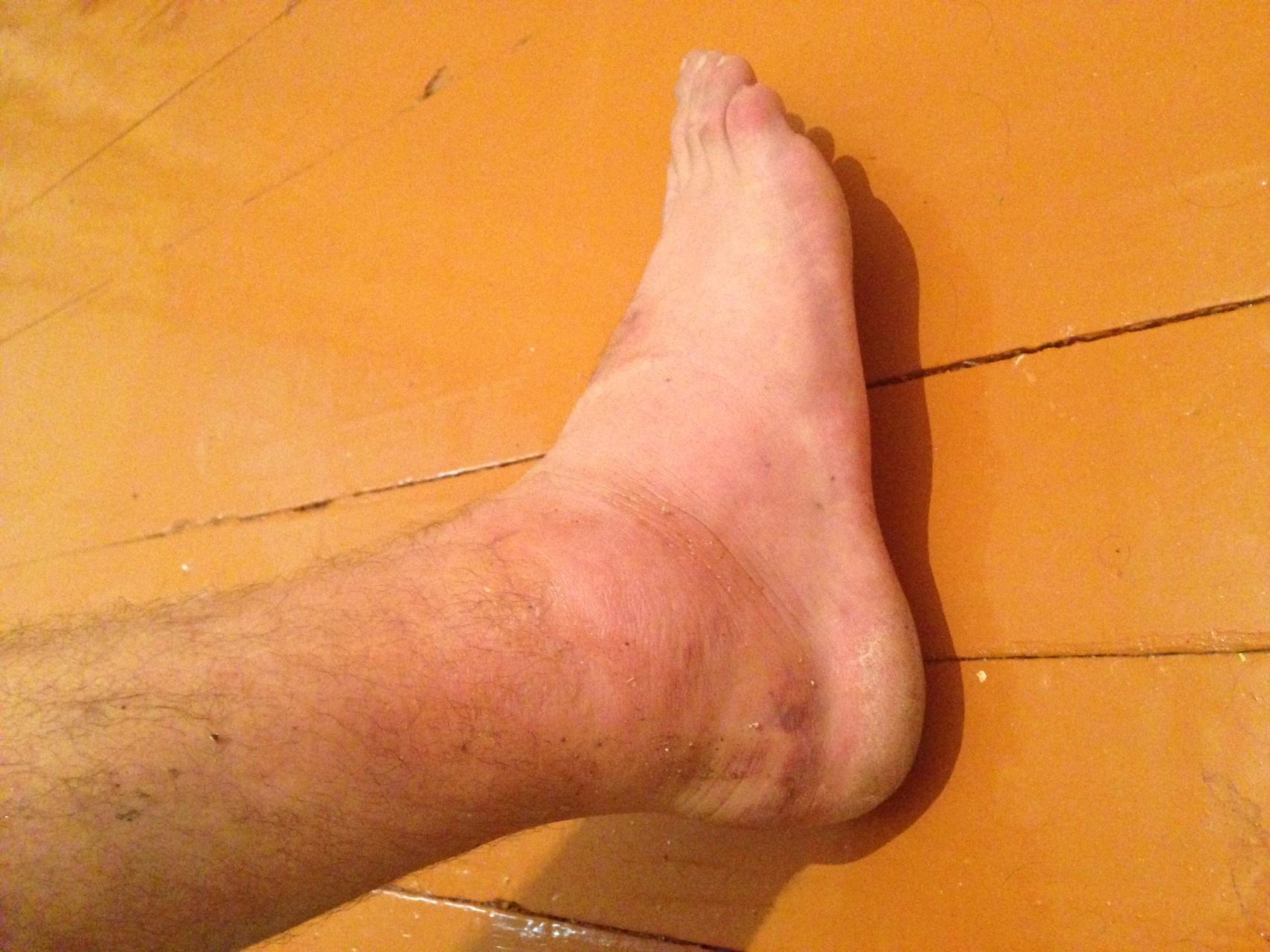 Ушиб ноги с отеком как и чем лечить в домашних условиях?