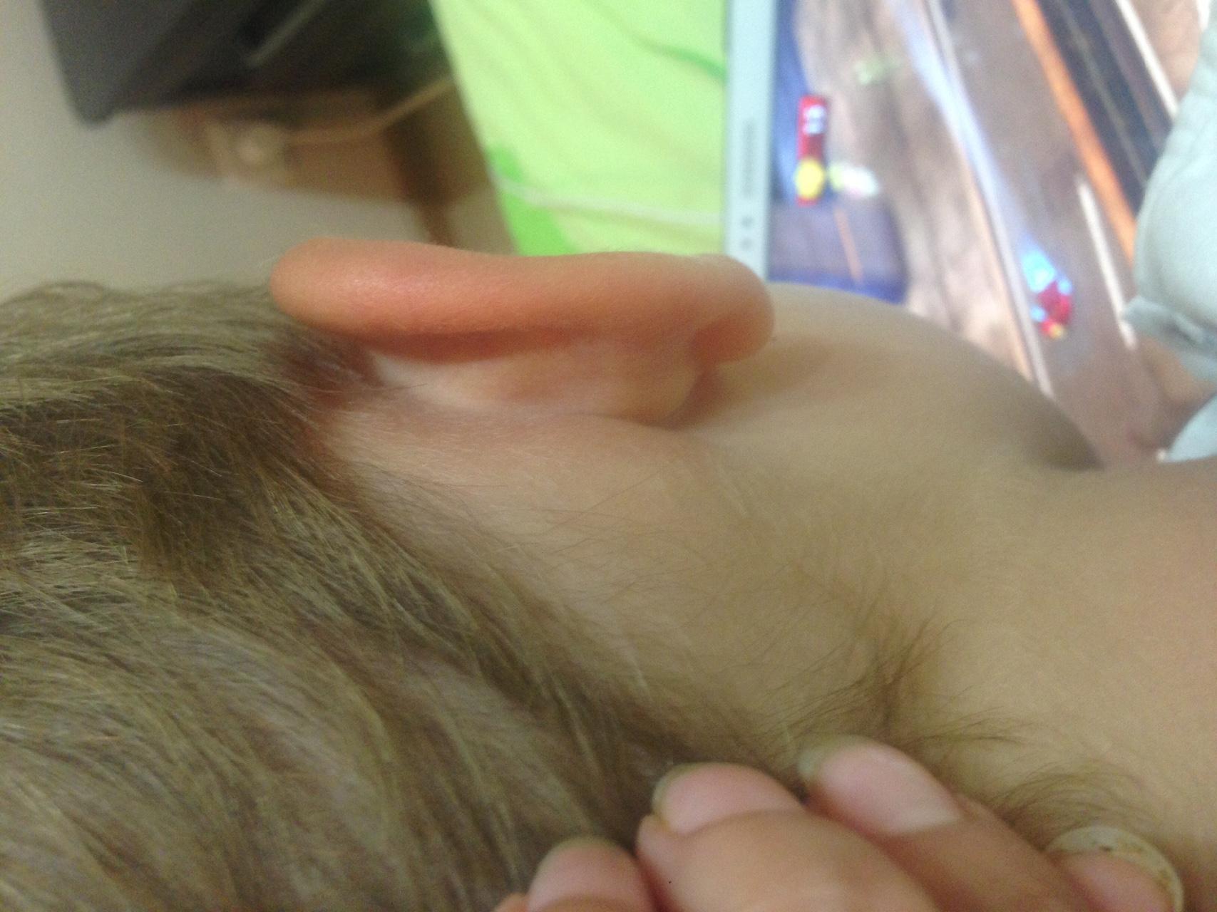 После промывание носа болит голова