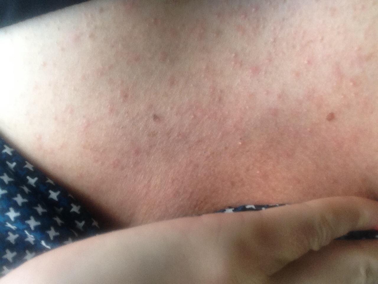 Между грудями красная сыпь