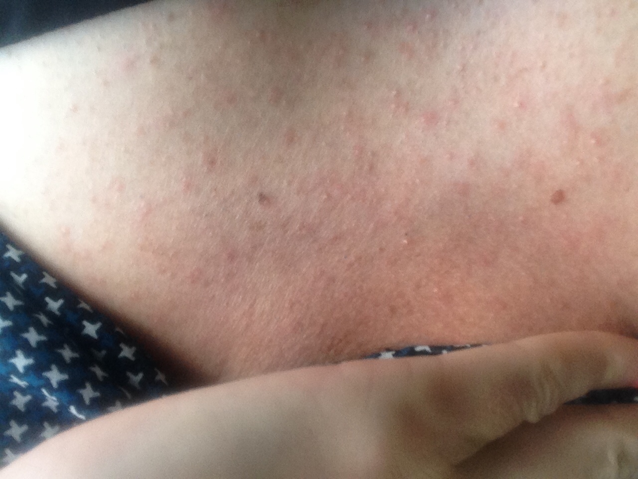 Потница между грудями 8 фотография