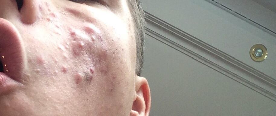 Как избавиться от прыщей на лице дерматолог