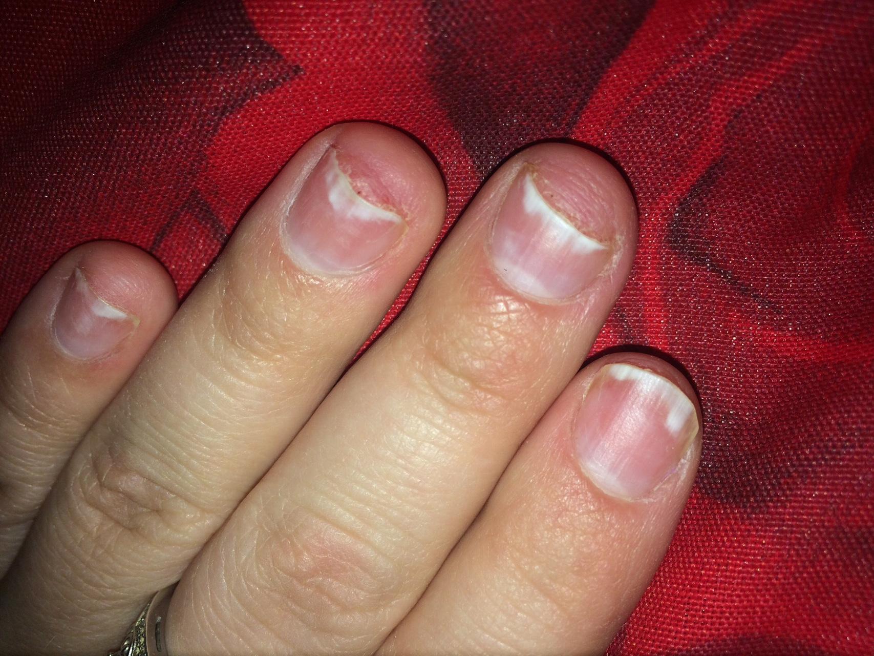 аллергия на ногтях после гель лака