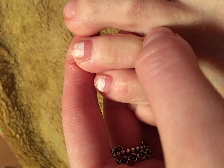 Белые пятна на ногтях: почему появляются, что означает 70