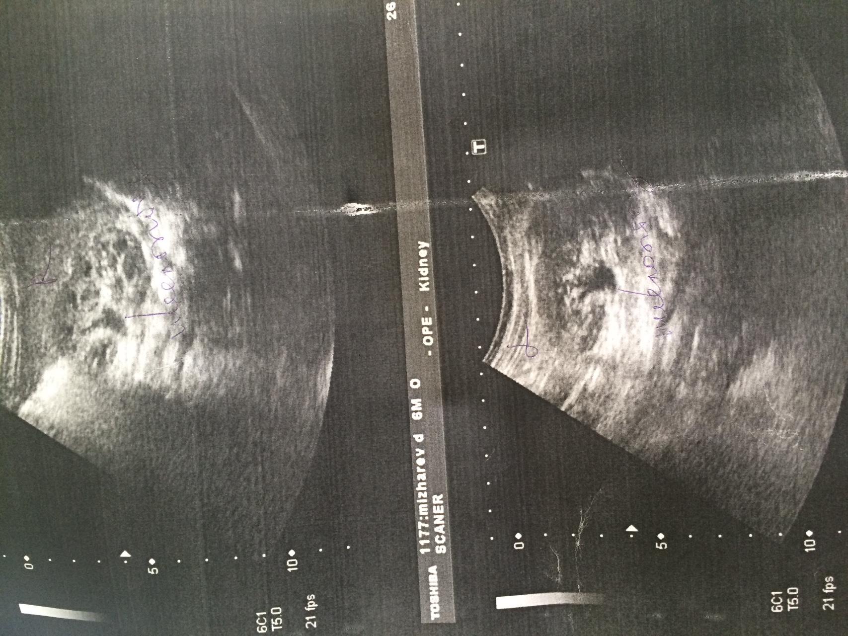 Пиелоэктазия справа при беременности у беременной 6