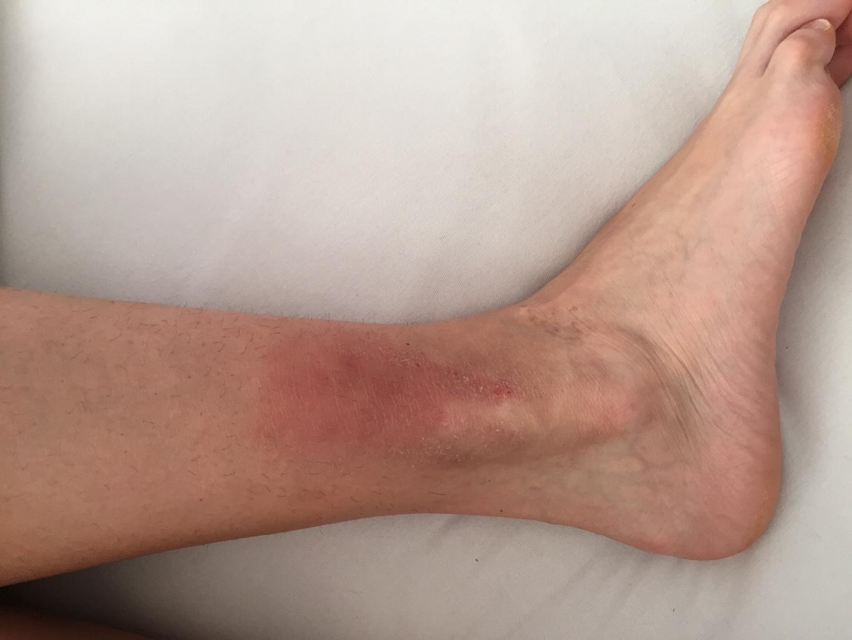 Красные пятна на голени ног