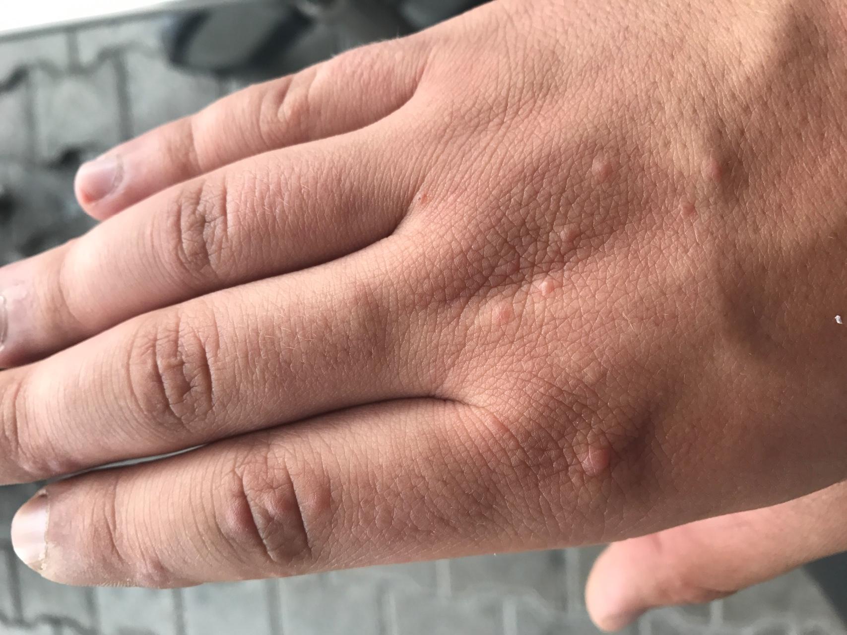 прыщи аллергия лишай комаровский форум
