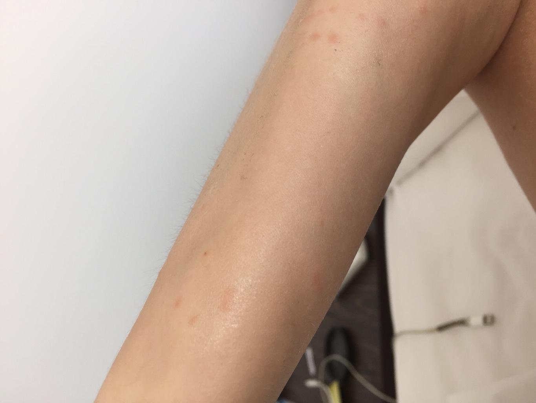 аллергия зуд по всему телу без высыпаний