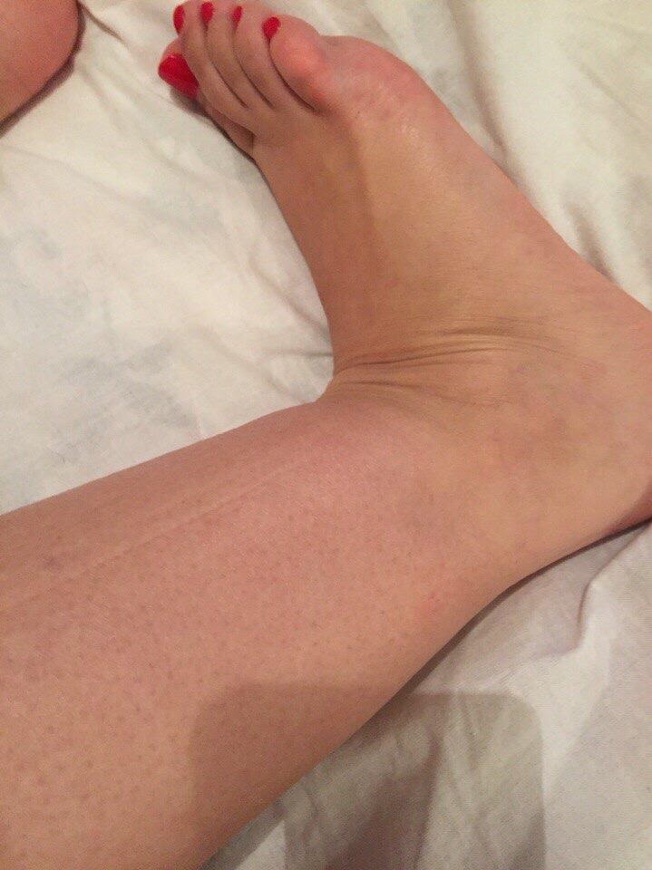 Картинка опухшая нога