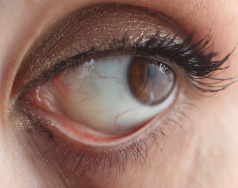 как отбелить белок глаз на фотографии назначении, контактная