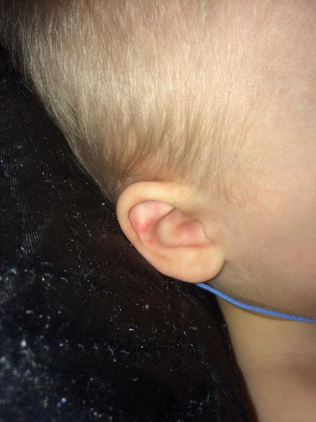 Красные уши у ребенка фото