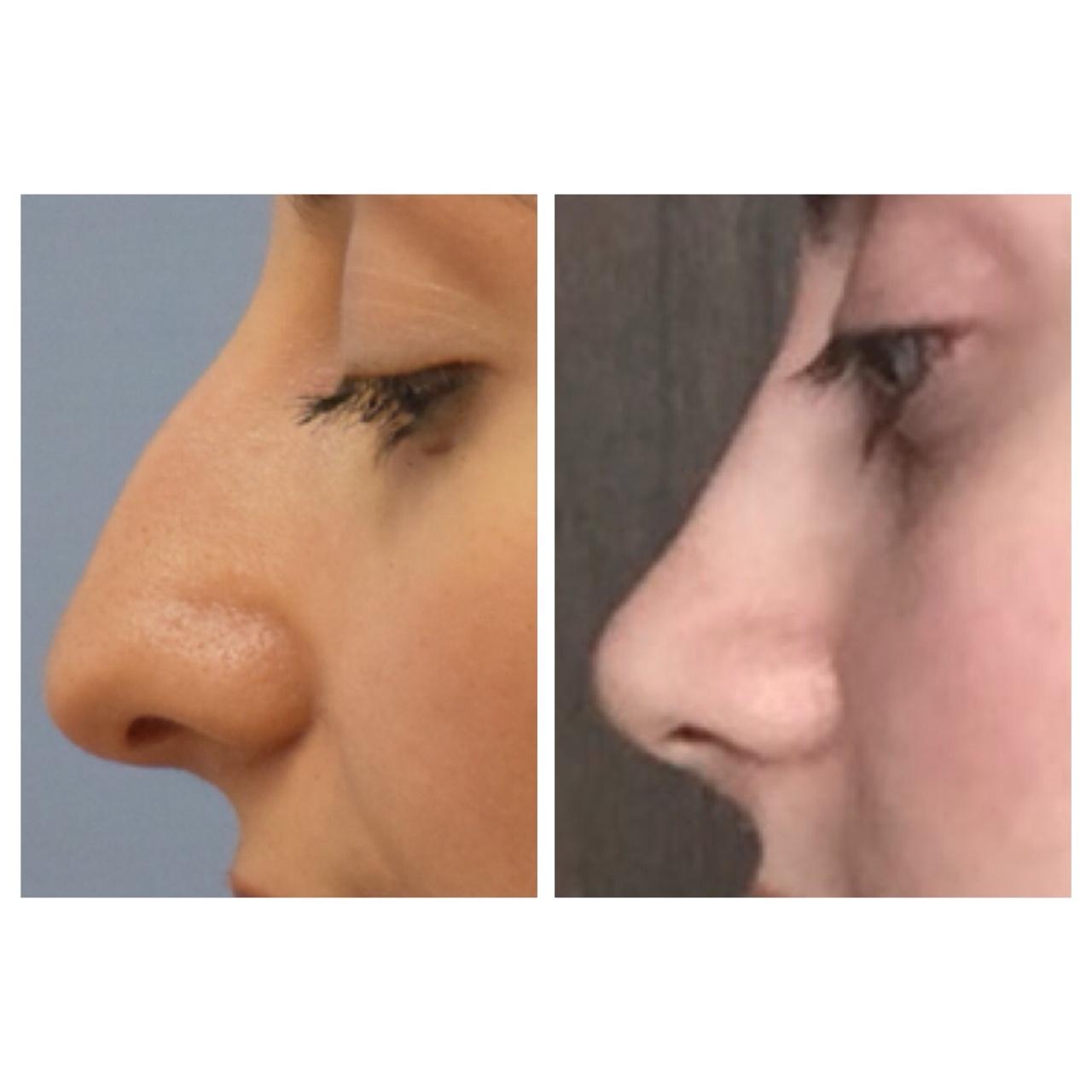 Внешний нос картинки
