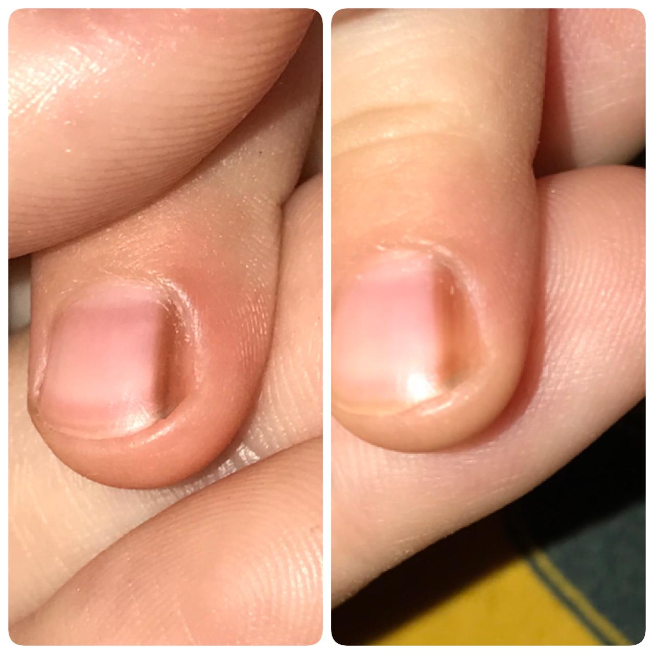 Полоски на ногтях причины у детей