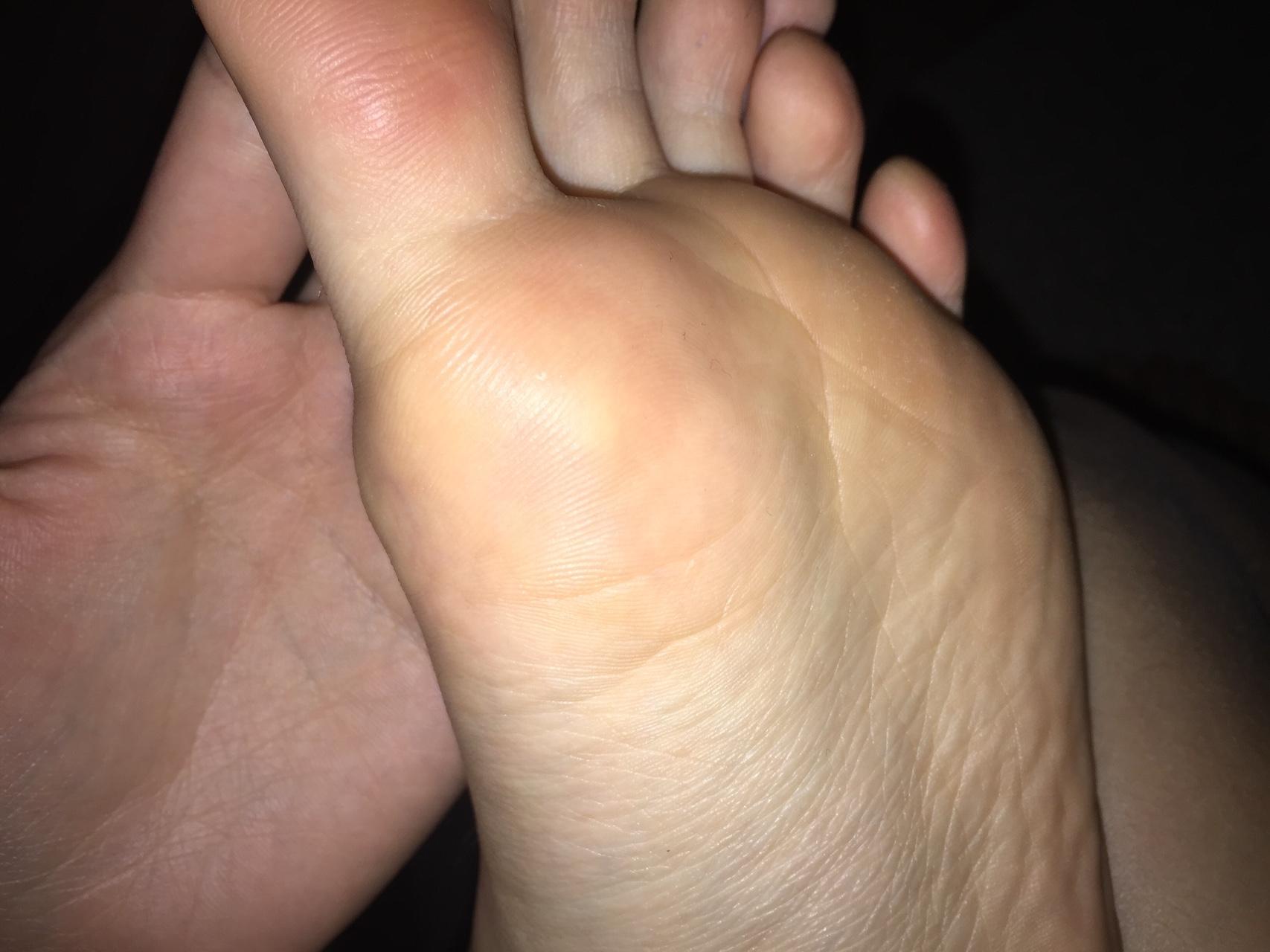 Шишка под большим пальцем ноги