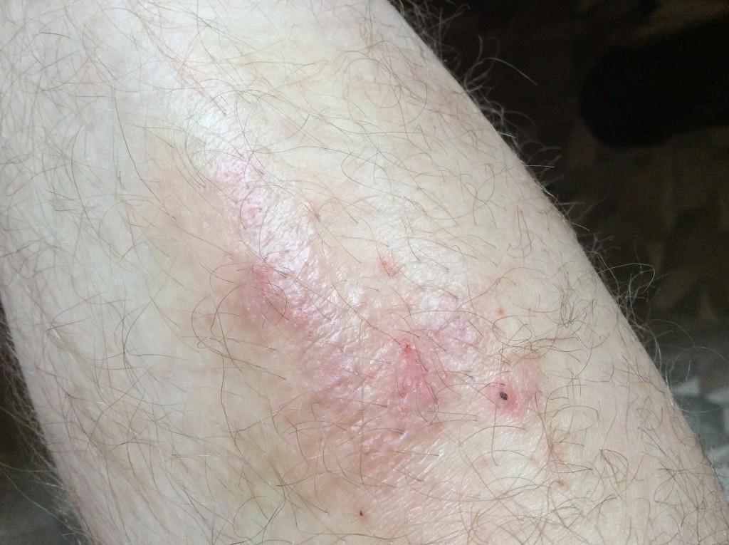 Болячки на ногах (язвы, пузыри) фото, возможные причины