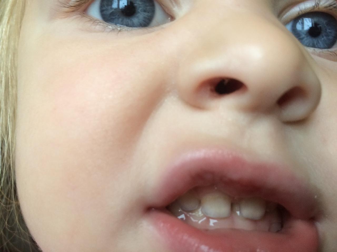 Фото номеров зубов у детей