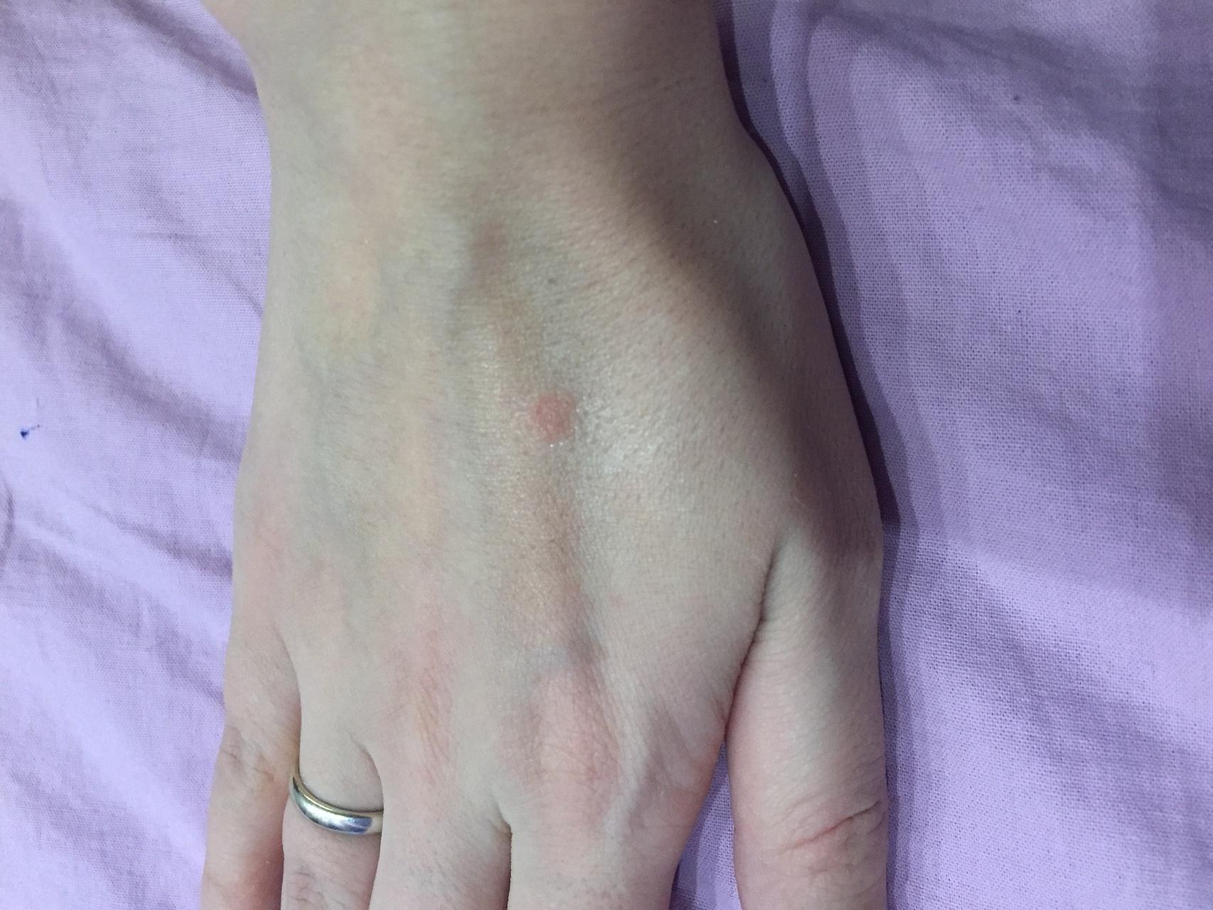 Что может вызвать сыпь - блог медицинского центра ОН Клиник