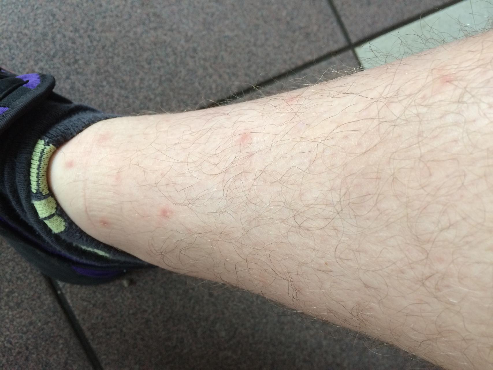 аллергия на укусы муравьев лечение