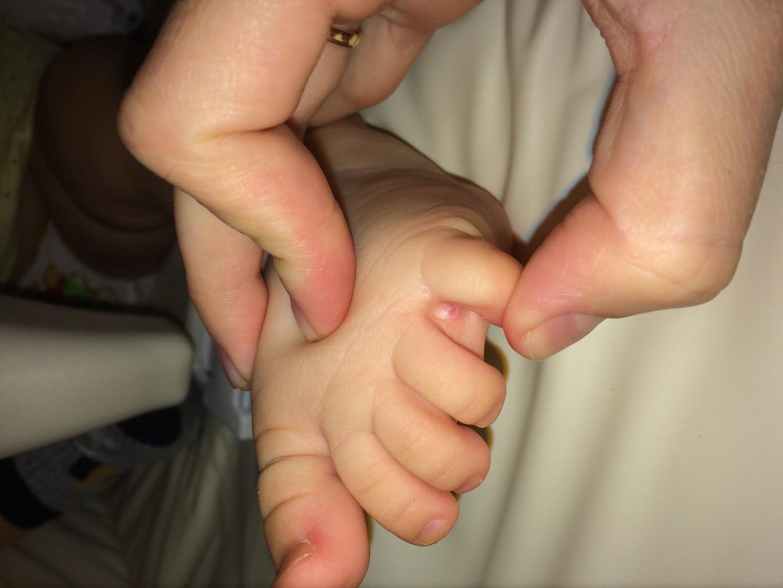 Как выглядит скопление смегмы у ребенка фото
