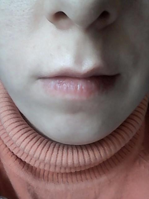 Не заживает слизистая на губе
