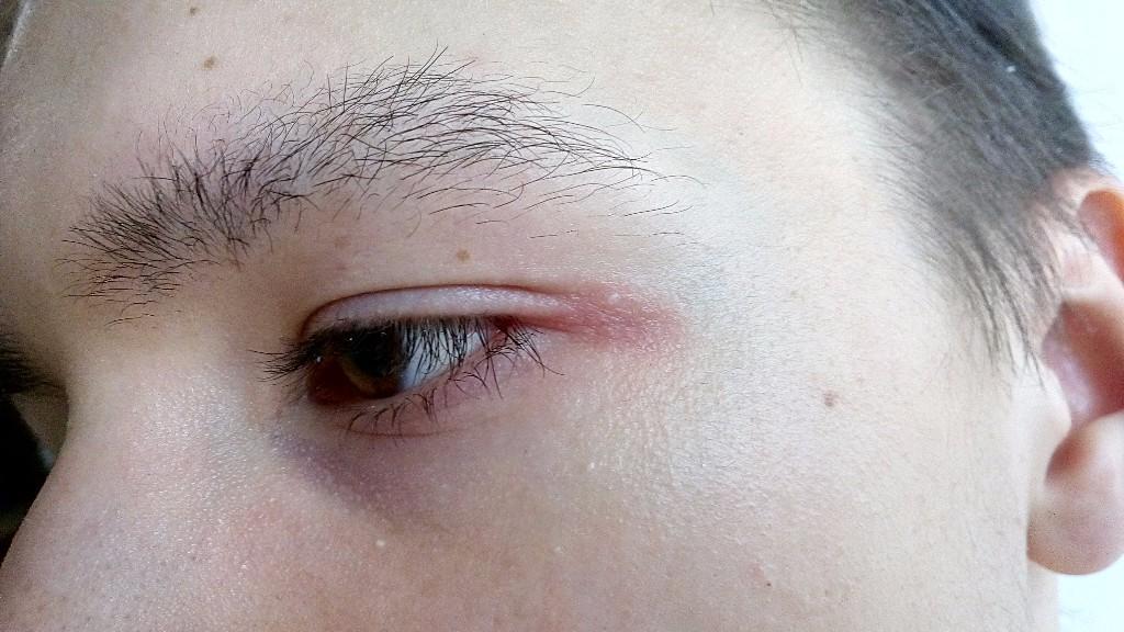 аромат почему чешется в уголках глаз представительниц слабого пола