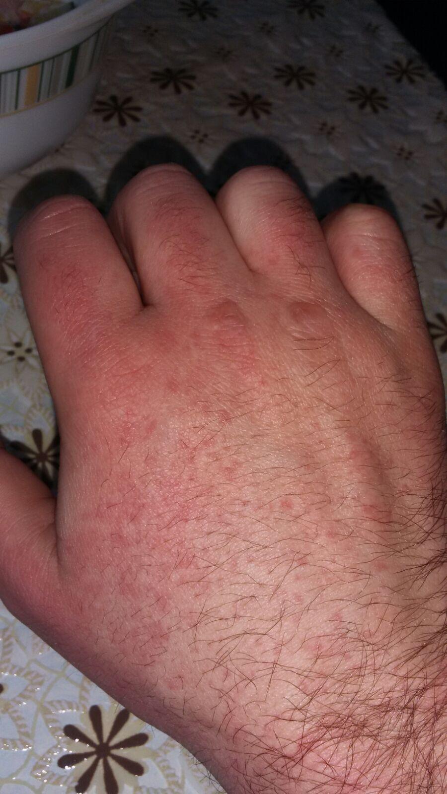 аллергия по всему телу у взрослого форум
