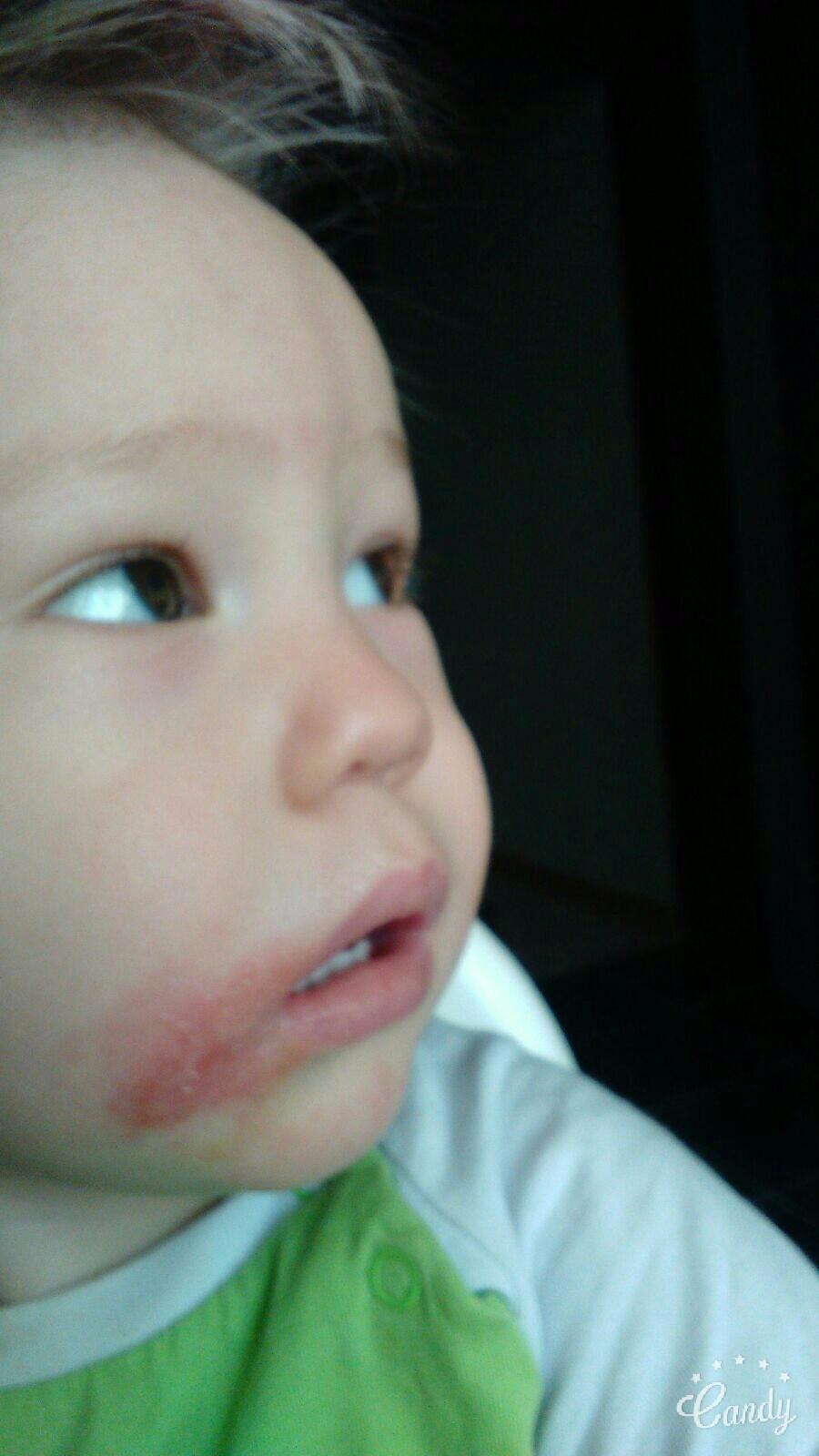 Белое пятно на щеке ребенка фото