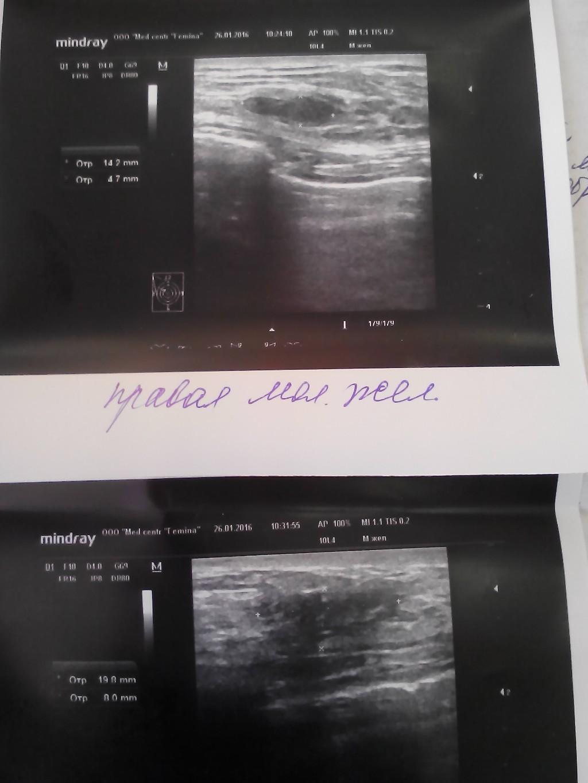 Молочные железы у детей узи фото