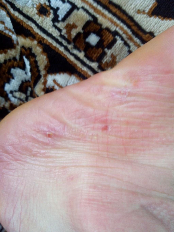 Прыщи на ступнях чешутся чем лечить