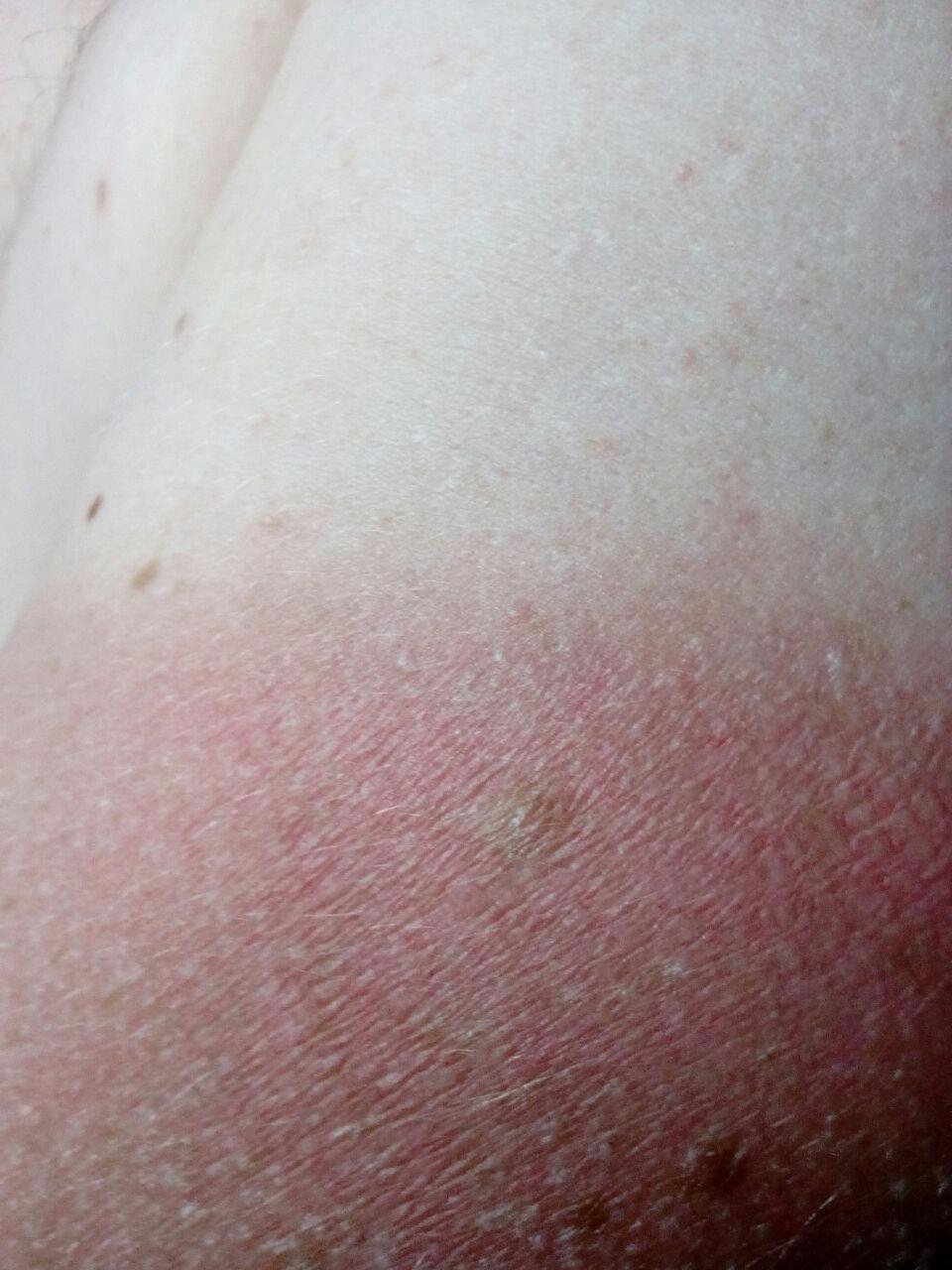 Сыпь на лице у ребенка 1 месяца 64