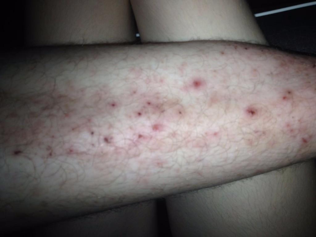 Зудящие прыщи на коже ног