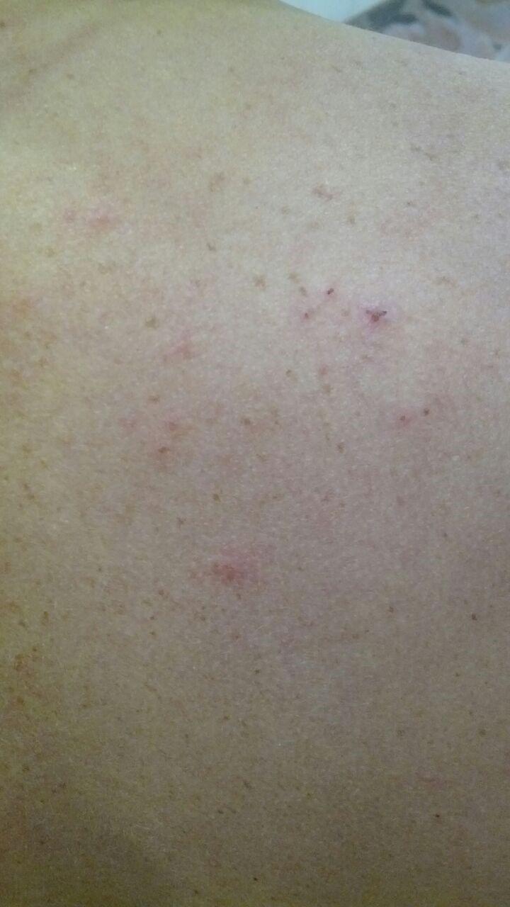 Кожные высыпания на теле взрослого: какие бывают виды сыпи