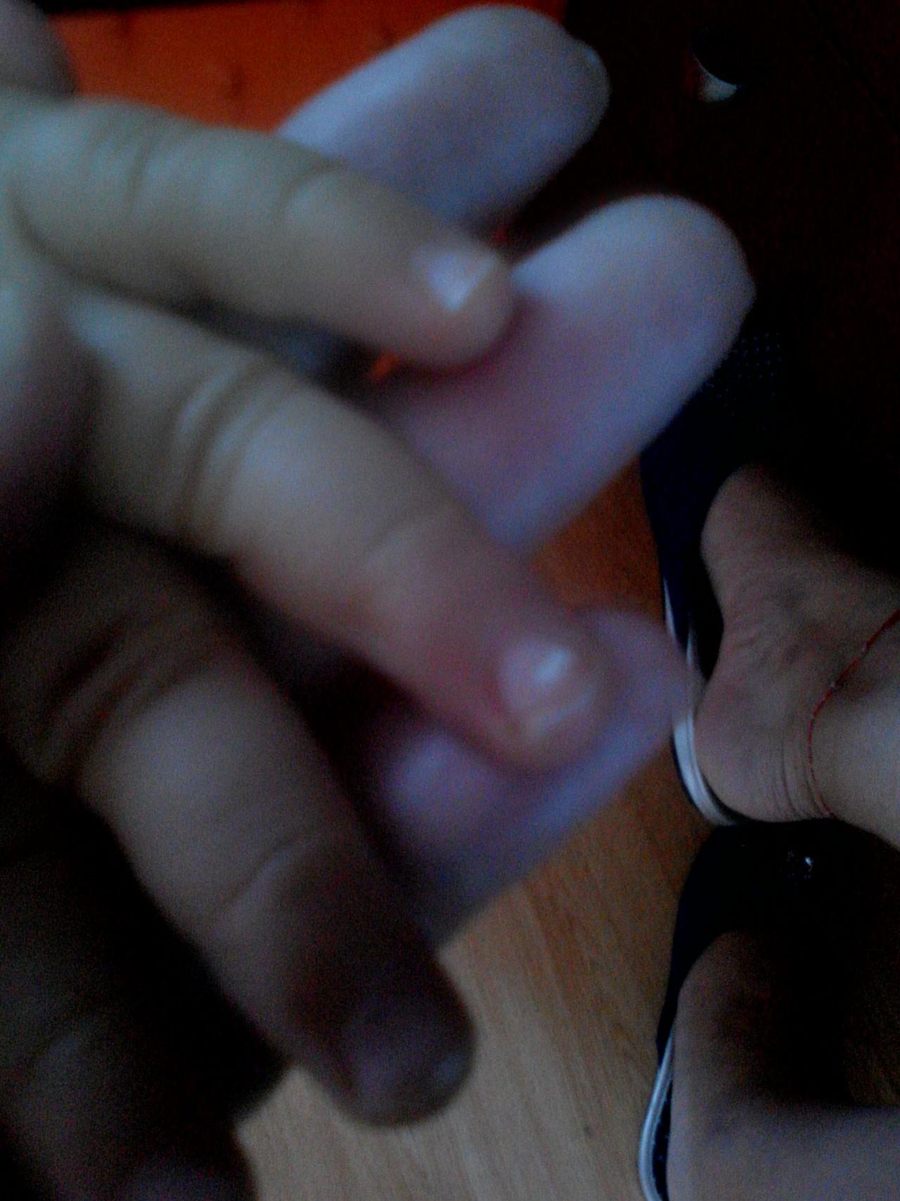 белые пятна на пальцах
