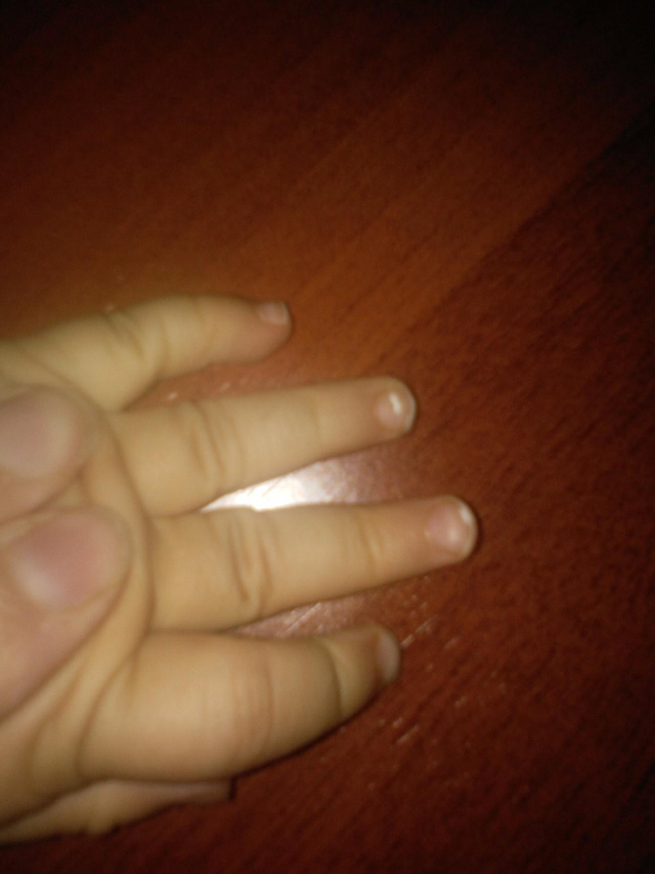 Белые пятна на ногтях: почему появляются, что означает 95