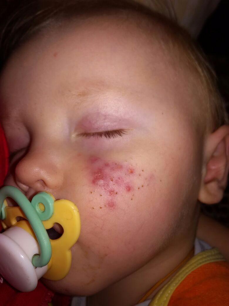 Прыщи пятна на лице как избавиться в домашних условиях