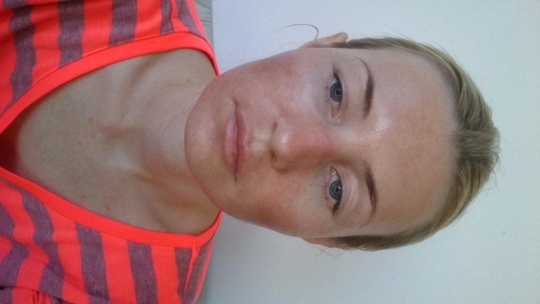 аллергия после пилинга лица химический