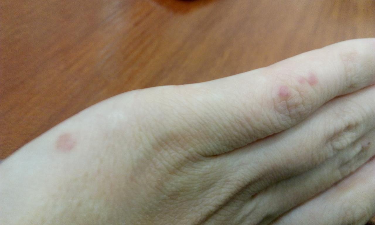 Красная точки на руке