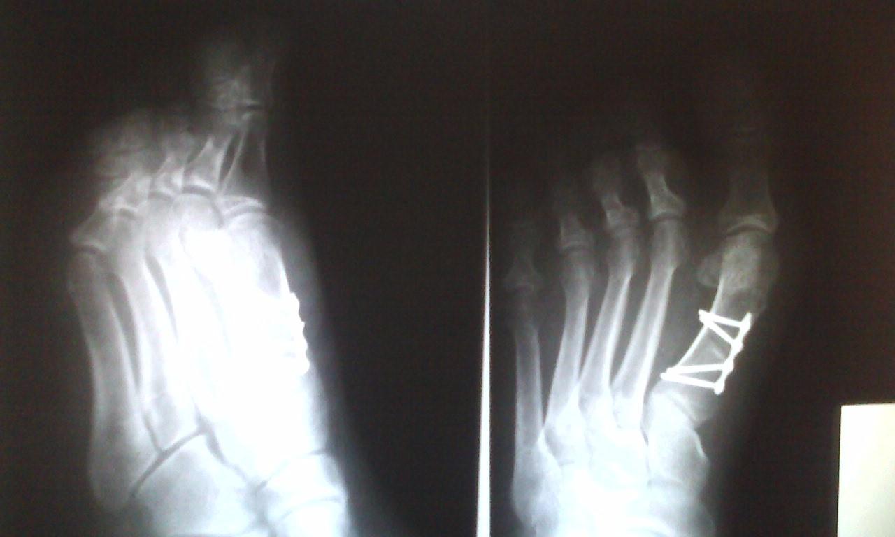 После операции по удалению косточки на ноге