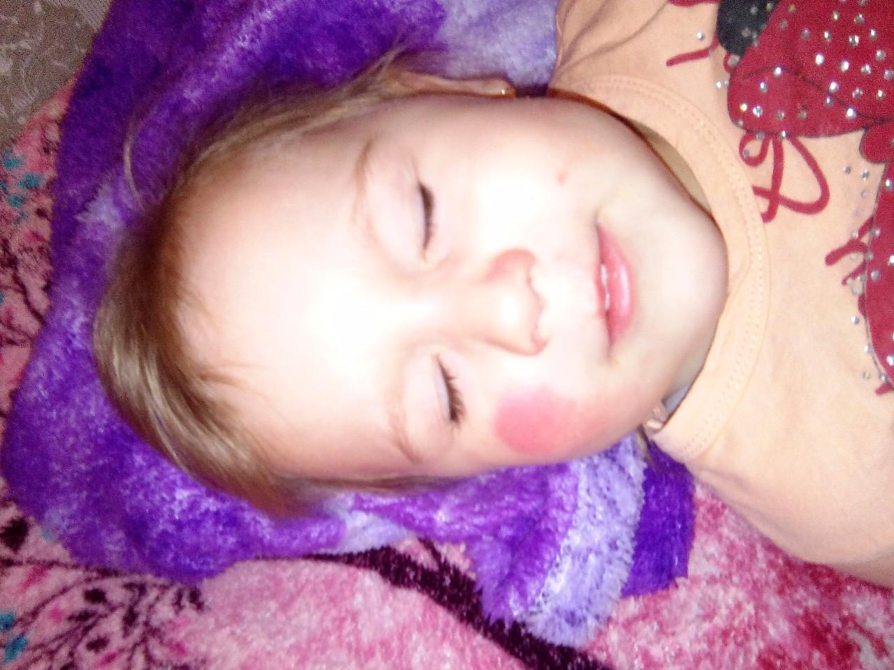аллергия красное под глазами