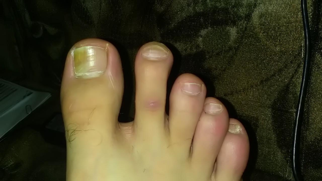 Как вылечить грибок ногтя большого пальца стопы