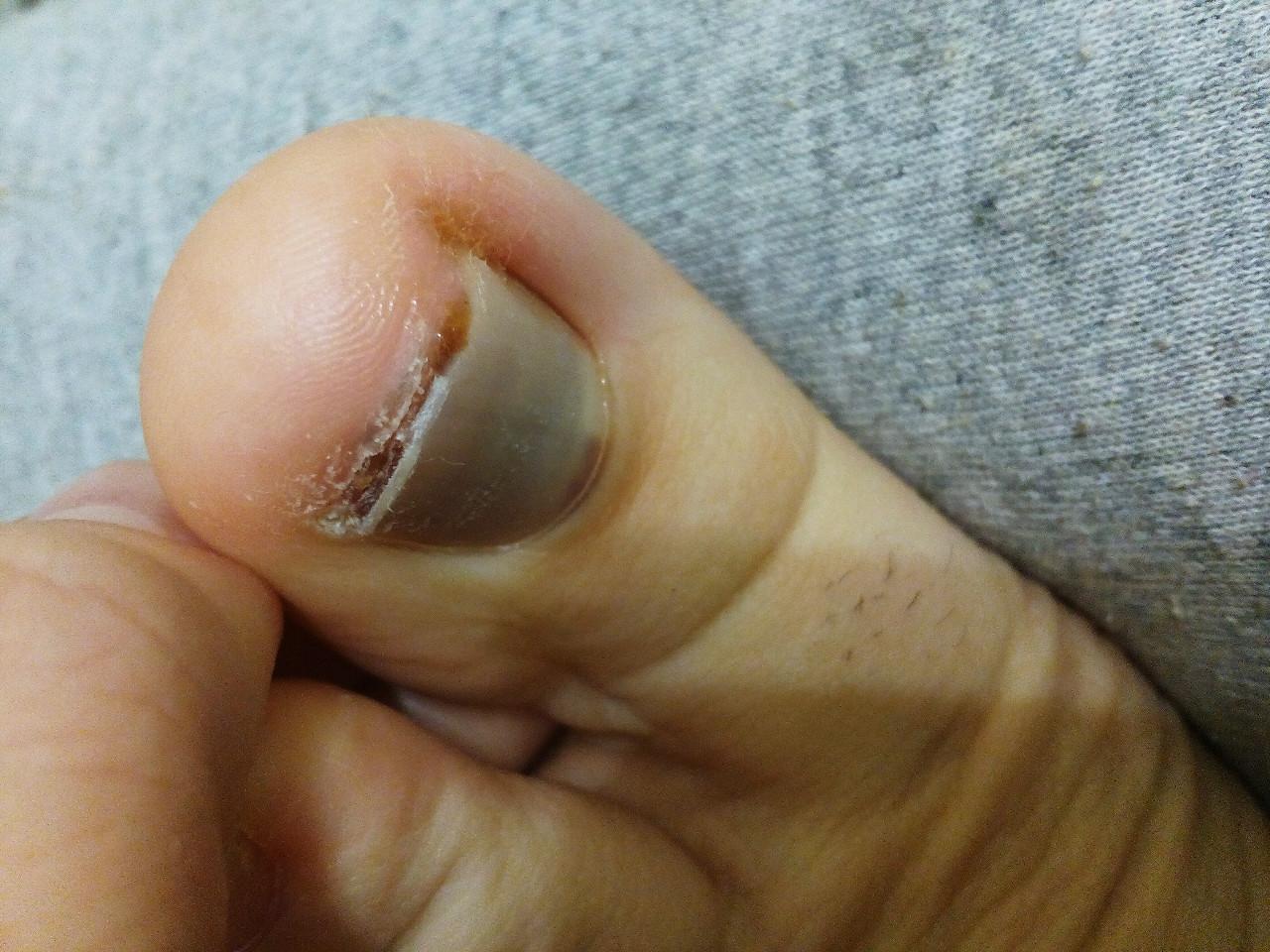 Грибок ногтей на ногах ирунин цена