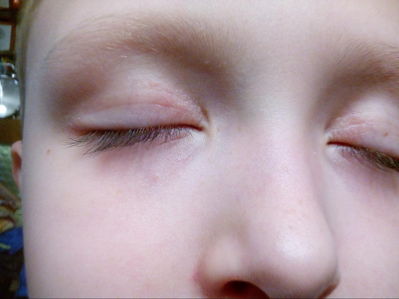 У ребенка режутся жевательные зубы фото