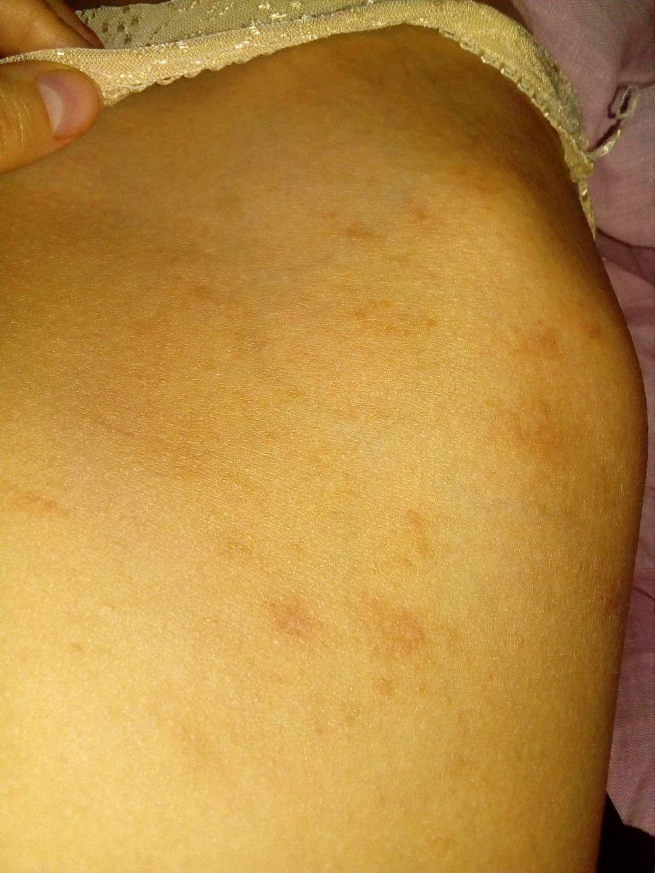 аллергия без зуда у взрослого
